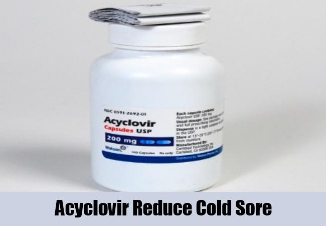 Acyclovir Reduce Cold Sore