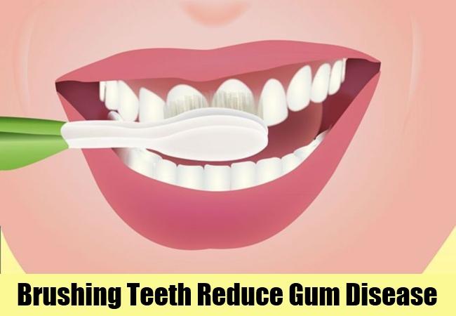 Brushing Teeth Reduce Gum Disease