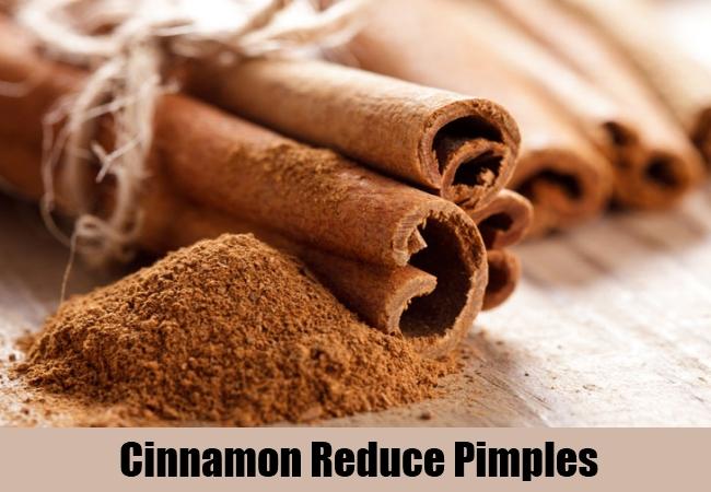 Cinnamon Reduce Pimples