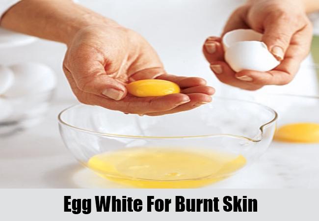 Egg White For Burnt Skin