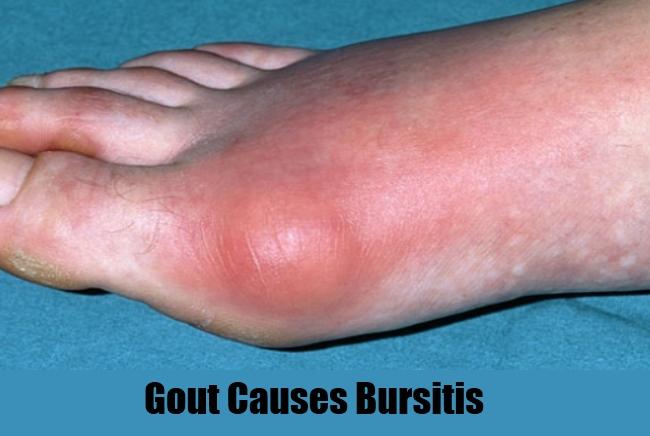 Gout Causes Bursitis