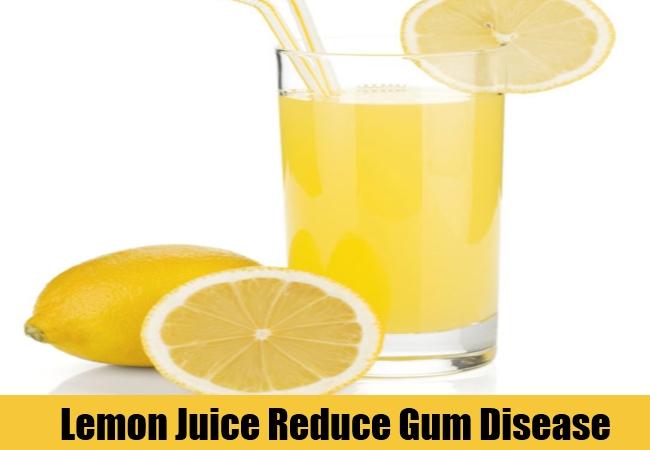Lemon Juice Reduce Gum Disease