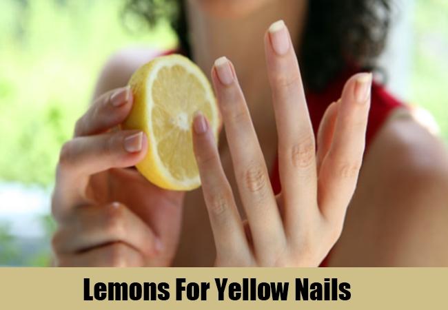 Lemons For Yellow Nails