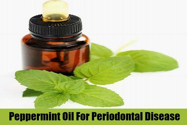 Peppermint Oil For Periodontal Disease