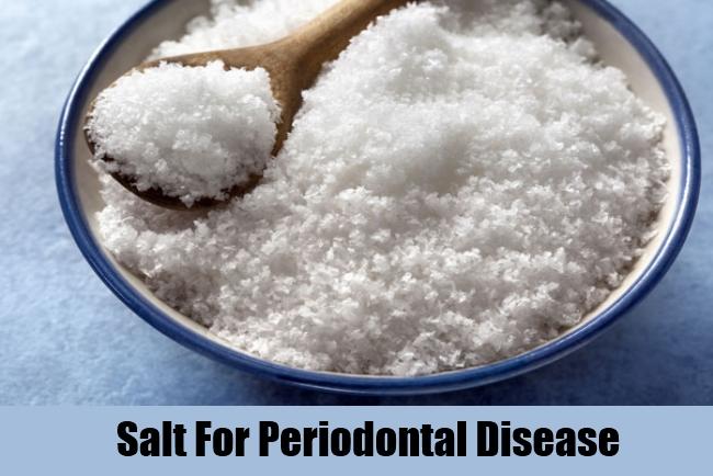 Salt For Periodontal Disease