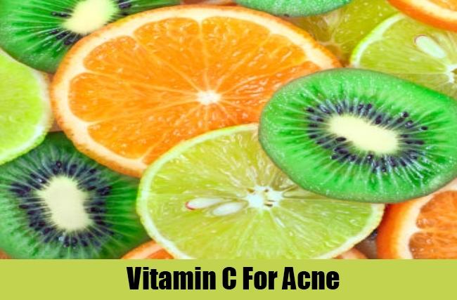 Vitamin C For Acne
