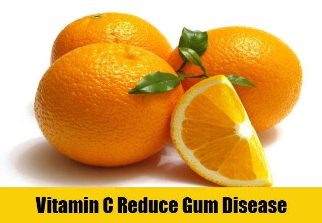 Vitamin C Reduce Gum Disease