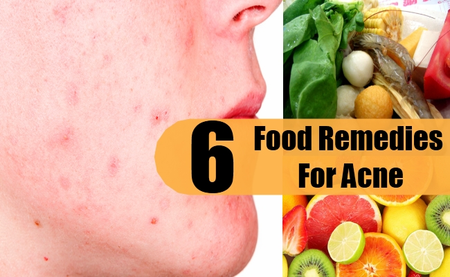 Food Remedies For Acne