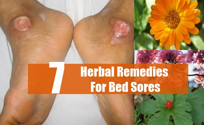 Herbal Remedies For Bed Sores