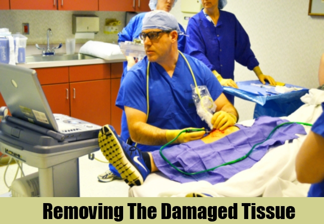 Removing The Damaged Tissue