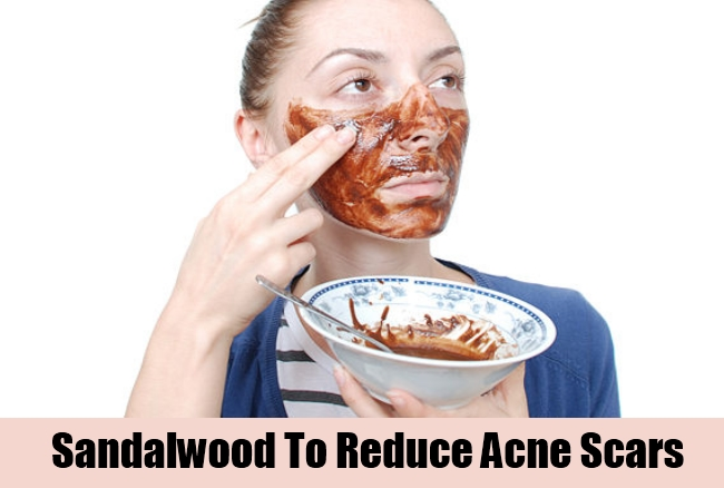 Sandalwood To Reduce Acne Scars