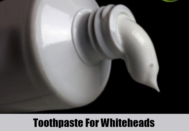 Toothpaste For Whiteheads