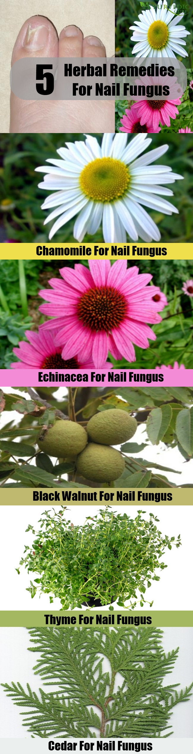 Top 5 Herbal Remedies For Nail Fungus