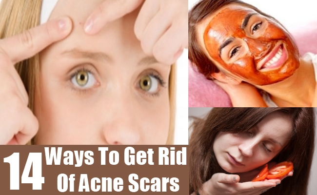 Ways To Get Rid Of Acne Scars