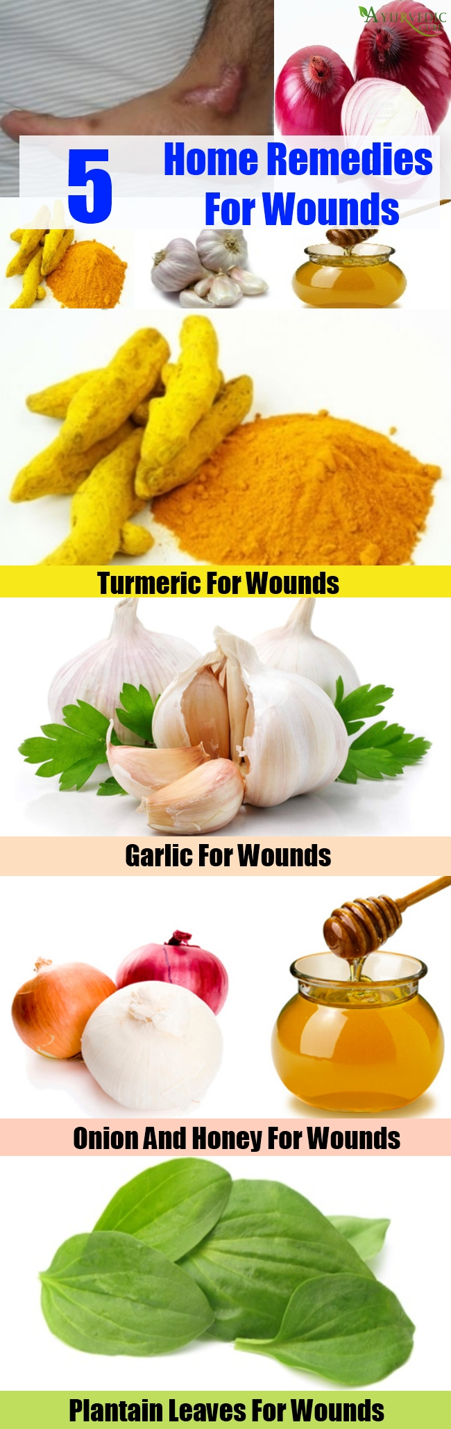Amazing Home Remedies For Wounds