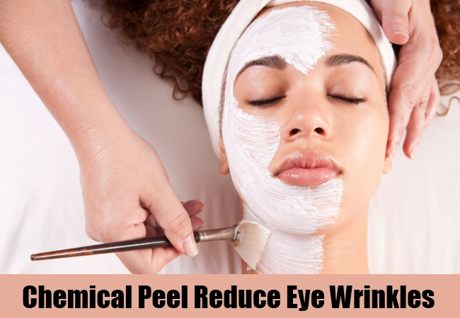 Chemical Peel Reduce Eye Wrinkles
