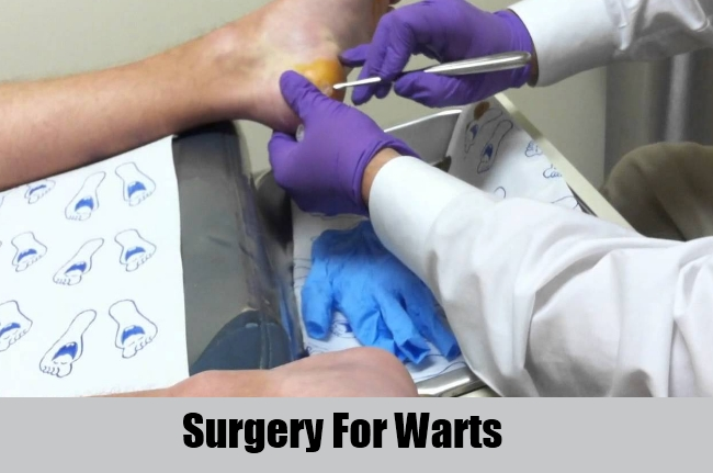 Surgery For Warts