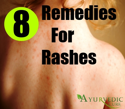 8 Remedies For Rashes